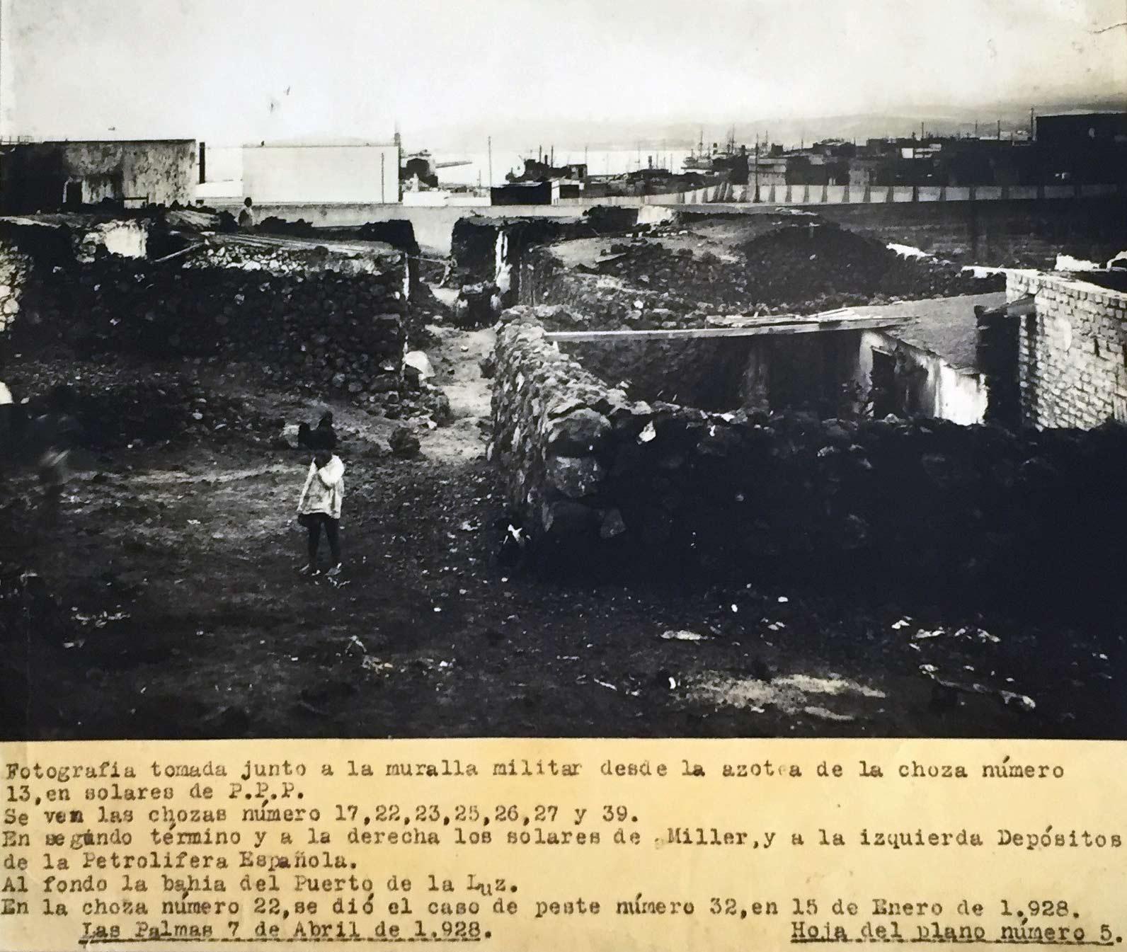 La Isleta años 30:  la República frena la peste