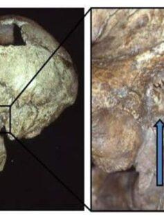 El oído de surfista era común entre los neandertales